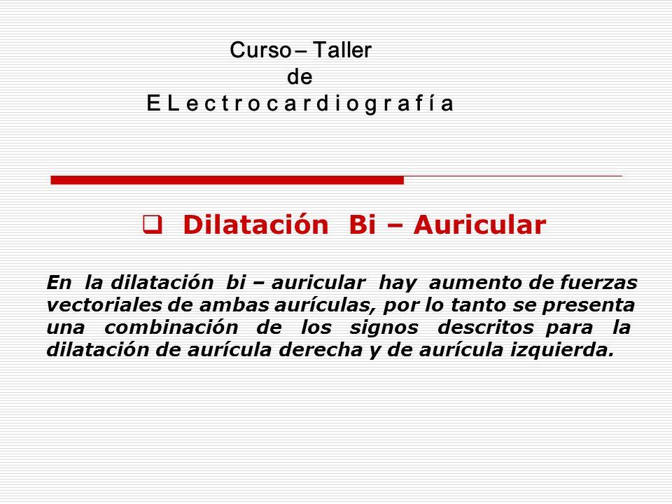 Curso – Taller de E L e c t r o c a r d i o g r a f í a Dilatación Bi – Auricular En la dilatación bi – auricular hay aumento de fuerzas vectoriales d