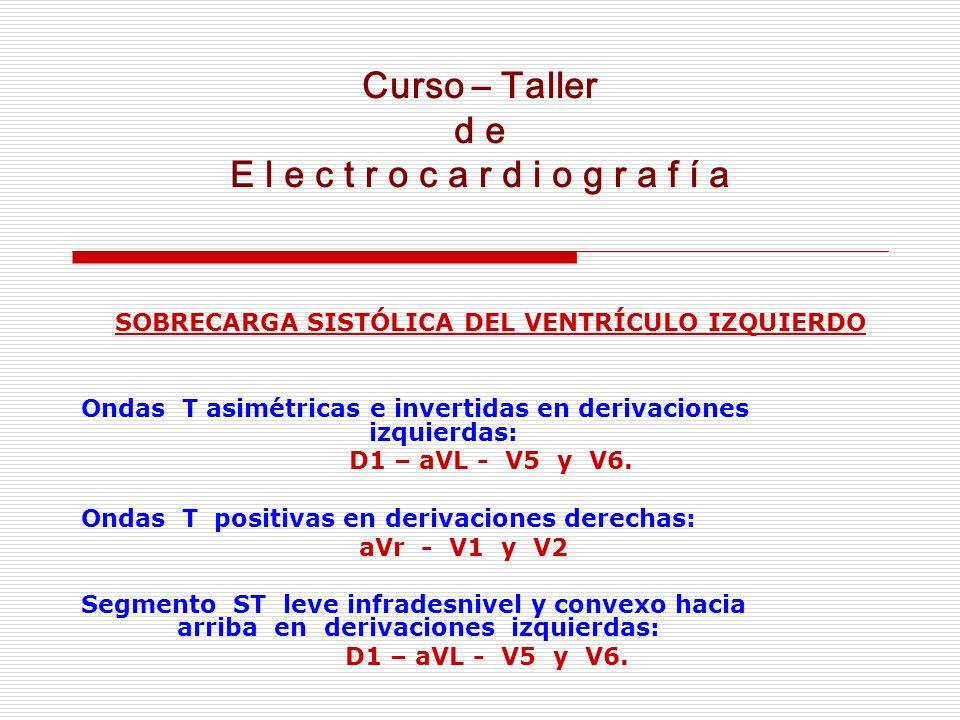 Curso – Taller d e E l e c t r o c a r d i o g r a f í a SOBRECARGA SISTÓLICA DEL VENTRÍCULO IZQUIERDO Ondas T asimétricas e invertidas en derivacione