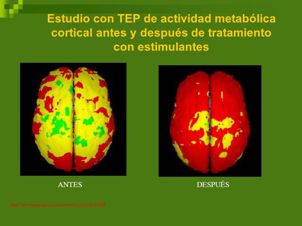 Estudio con TEP de actividad metabólica cortical antes y después de tratamiento con estimulantes http://news.biocompare.com/newsstory.asp?id=16586 ANT