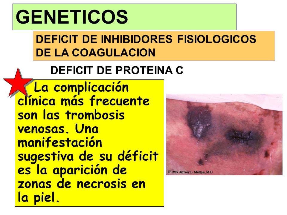 DEFICIT DE INHIBIDORES FISIOLOGICOS DE LA COAGULACION GENETICOS La complicación clínica más frecuente son las trombosis venosas. Una manifestación sug
