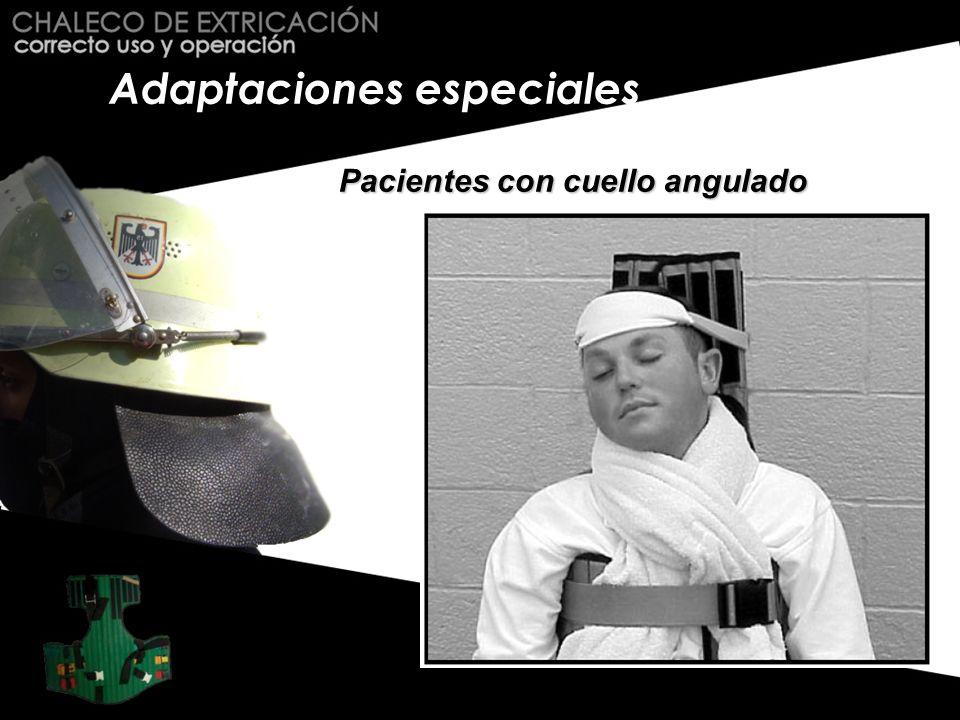 Adaptaciones especiales Pacientes con cuello angulado