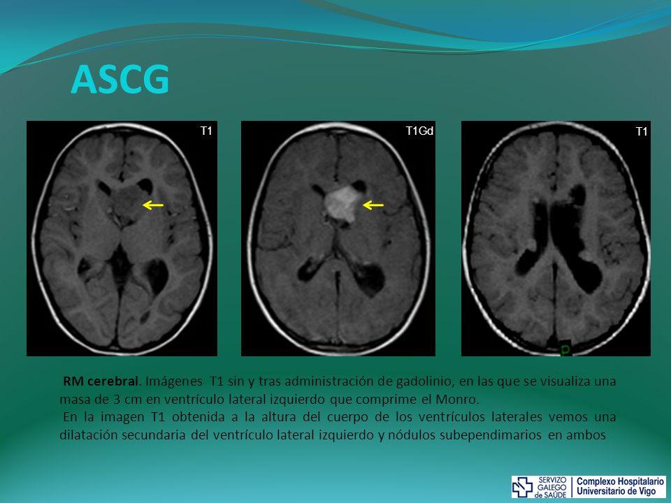 ASCG RM cerebral. Imágenes T1 sin y tras administración de gadolinio, en las que se visualiza una masa de 3 cm en ventrículo lateral izquierdo que com