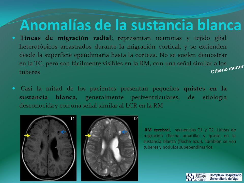 Manifestaciones renales La aparición de angiomiolipomas (AML) es muy frecuente en la ET, de hecho el 75% de los niños con ET los presentan y suelen ser múltiples y bilaterales.