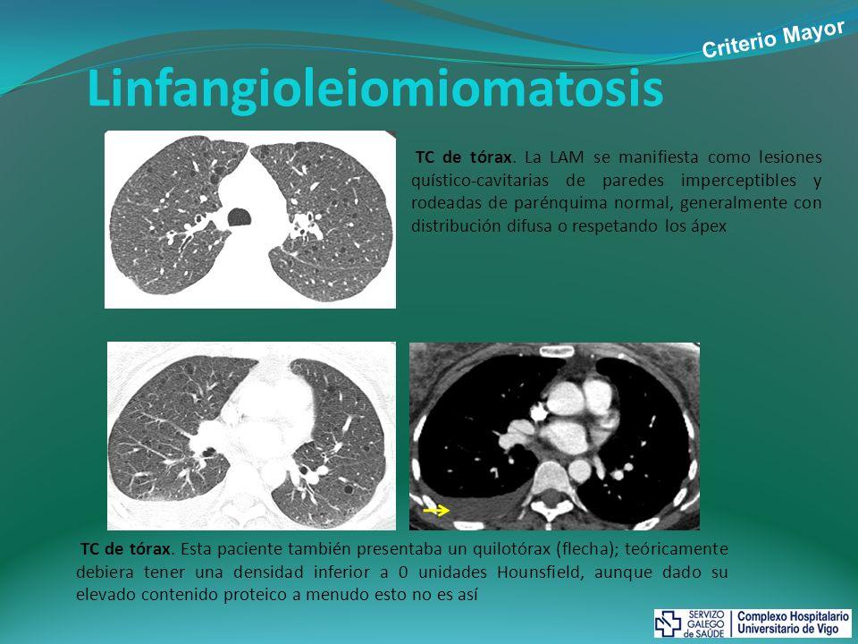 Linfangioleiomiomatosis TC de tórax. La LAM se manifiesta como lesiones quístico-cavitarias de paredes imperceptibles y rodeadas de parénquima normal,