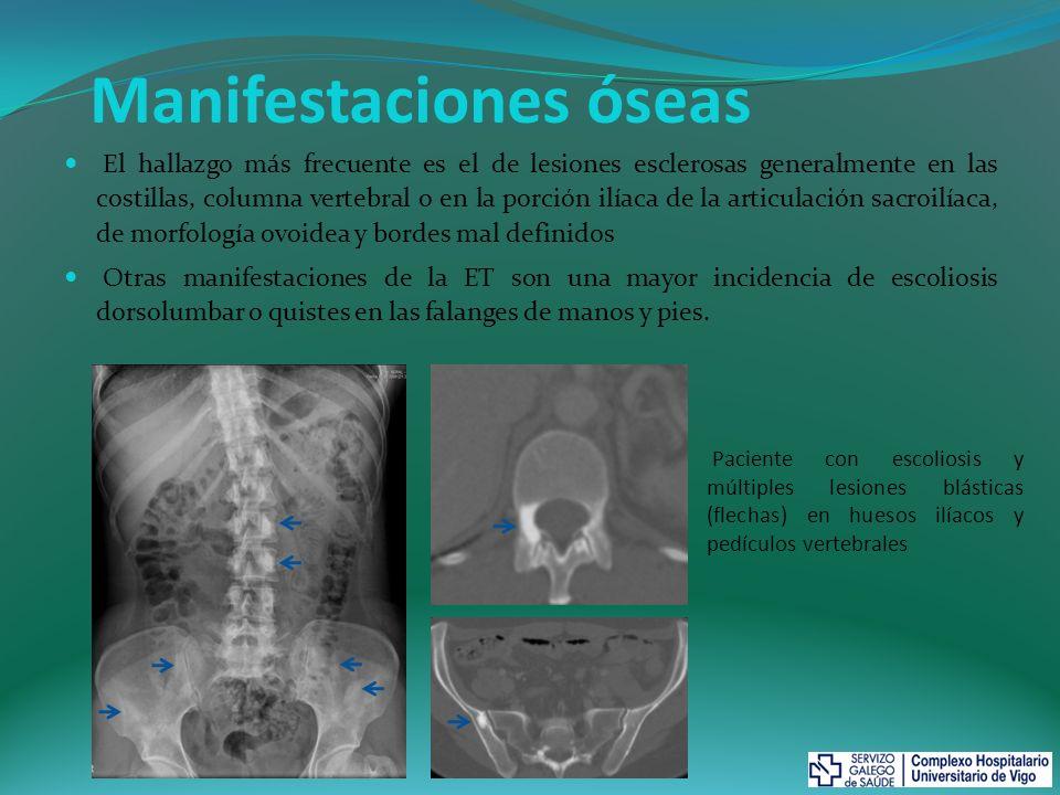 Manifestaciones óseas El hallazgo más frecuente es el de lesiones esclerosas generalmente en las costillas, columna vertebral o en la porción ilíaca d