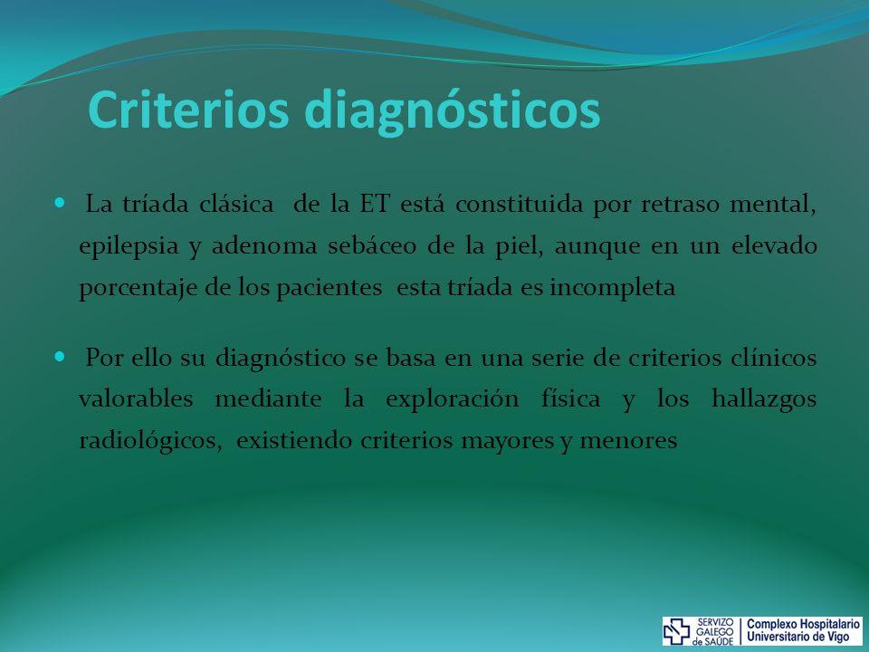 Criterios mayores: Angiofibroma facial Fibroma periungueal Máculas hipomelanóticas (>3) Placas de Shagreen Tuber cortical (*) Nódulo subependimario Astrocitoma de células gigantes subependimario Múltiples hamartomas retinianos Rabdomioma cardiaco Linfangioleiomiomatosis (**) Angiomiolipoma renal (**) Criterios menores Pits dentales Pólipos hamartomatosos rectales Quistes óseos Líneas de migración radial de la sustancia blanca (*) Fibromas gingivales Hamartoma no renal Mancha acrómica retiniana Máculas cutáneas en confetti Múltiples quistes renales Diagnóstico: -Definitivo: dos criterios mayores o un criterio mayor y dos menores -Probable: un criterio mayor y otro menor -Sospecha: un solo criterio mayor o al menos dos criterios menores (*) Juntas se consideran un solo criterio (**) La asociación de ambos requiere un tercer criterio para hacer el diagnóstico