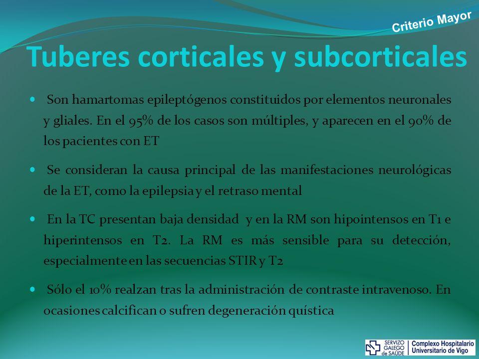 Tuberes corticales y subcorticales RM cerebral.