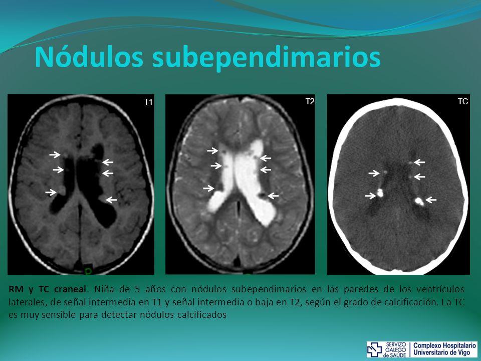 Astrocitomas subependimarios de células gigantes (ASCG) Son neoplasias de bajo grado constituidas por astrocitos y células gigantes Se localizan cerca del agujero de Monro, de modo que pueden dar lugar a obstrucción ventricular e hidrocefalia A diferencia de otros astrocitomas, los ASCG tienen características benignas, como crecimiento lento, ausencia de edema cerebral y mínima invasividad Su aspecto es similar a los nódulos subependimarios en la TC y RM, de modo que el diagnóstico de ASCG se realiza cuando: el tamaño es mayor de 10 mm se demuestra crecimiento produce hidrocefalia Si un nódulo mide más de 5mm, no está completamente calcificado, realza tras CIV o se localiza cerca del Monro, se recomienda realizar RM de control Criterio Mayor