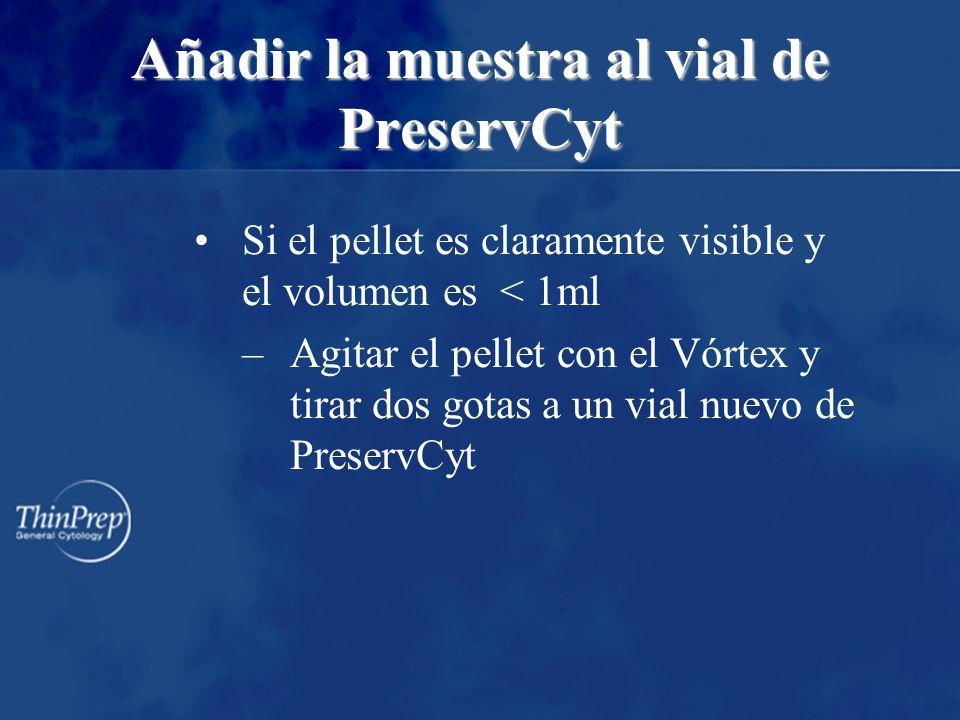 Añadir la muestra al vial de PreservCyt Si el pellet es claramente visible y el volumen es < 1ml –Agitar el pellet con el Vórtex y tirar dos gotas a un vial nuevo de PreservCyt