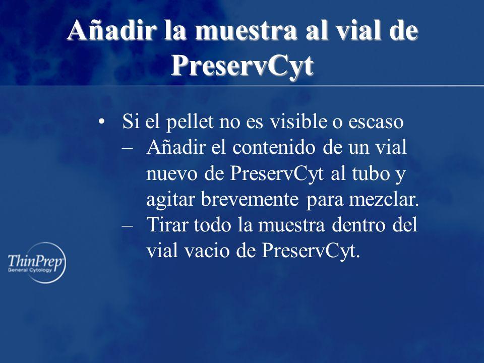 Añadir la muestra al vial de PreservCyt Si el pellet no es visible o escaso –Añadir el contenido de un vial nuevo de PreservCyt al tubo y agitar brevemente para mezclar.