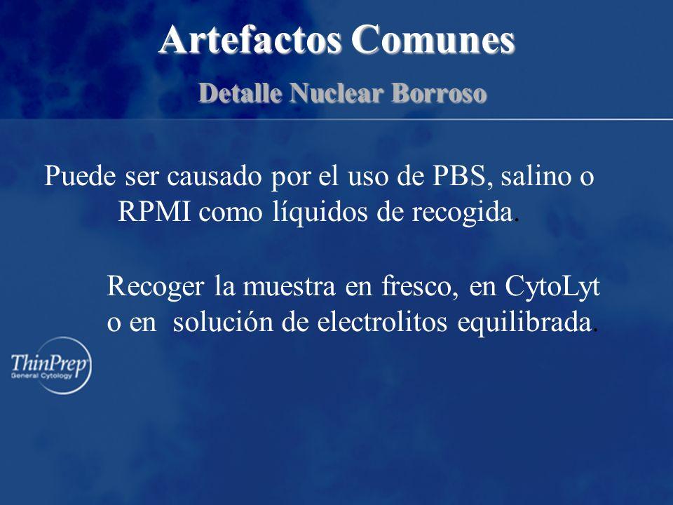 Artefactos Comunes Detalle Nuclear Borroso Puede ser causado por el uso de PBS, salino o RPMI como líquidos de recogida.