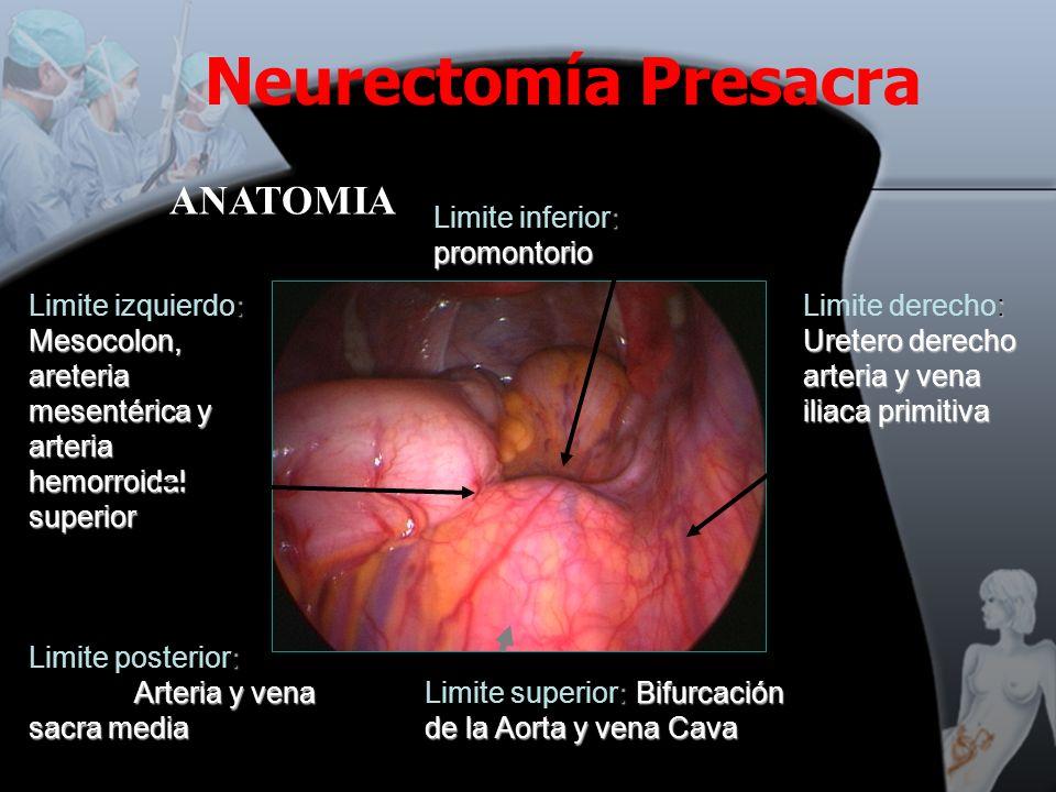 : Bifurcación de la Aorta y vena Cava Limite superior: Bifurcación de la Aorta y vena Cava : Uretero derecho arteria y vena iliaca primitiva Limite de