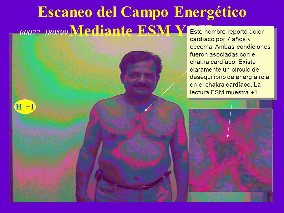 Escaneo del Campo Energético Mediante ESM Y PIP H +1 Este hombre reportó dolor cardíaco por 7 años y eccema. Ambas condiciones fueron asociadas con el