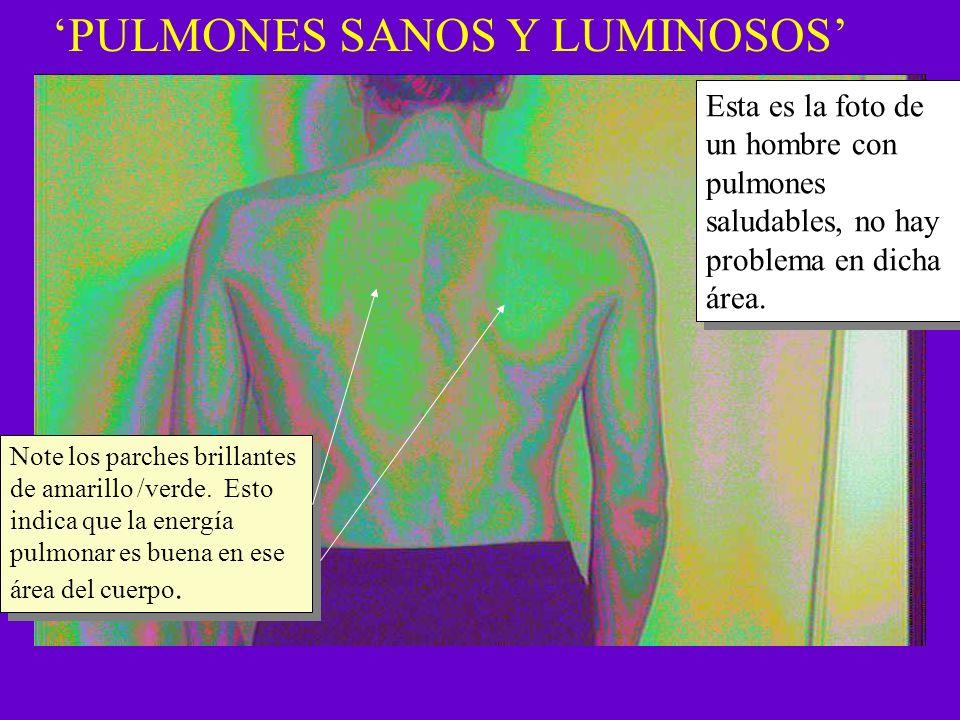PULMONES SANOS Y LUMINOSOS Esta es la foto de un hombre con pulmones saludables, no hay problema en dicha área. Note los parches brillantes de amarill