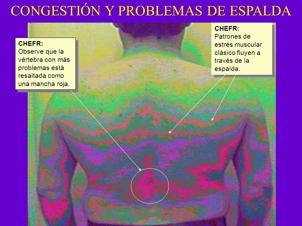 CONGESTIÓN Y PROBLEMAS DE ESPALDA CHEFR: Observe que la vértebra con más problemas está resaltada como una mancha roja. CHEFR: Observe que la vértebra