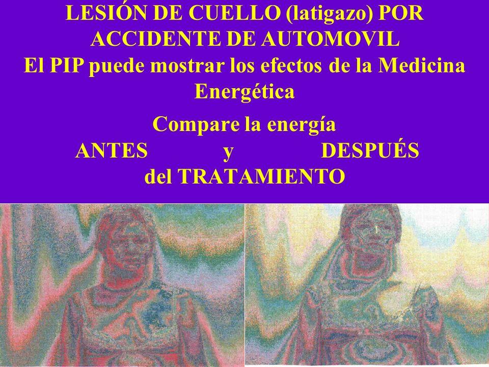 Compare la energía ANTES y DESPUÉS del TRATAMIENTO LESIÓN DE CUELLO (latigazo) POR ACCIDENTE DE AUTOMOVIL El PIP puede mostrar los efectos de la Medic