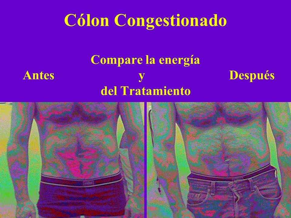 Compare la energía Antes y Después del Tratamiento Cólon Congestionado