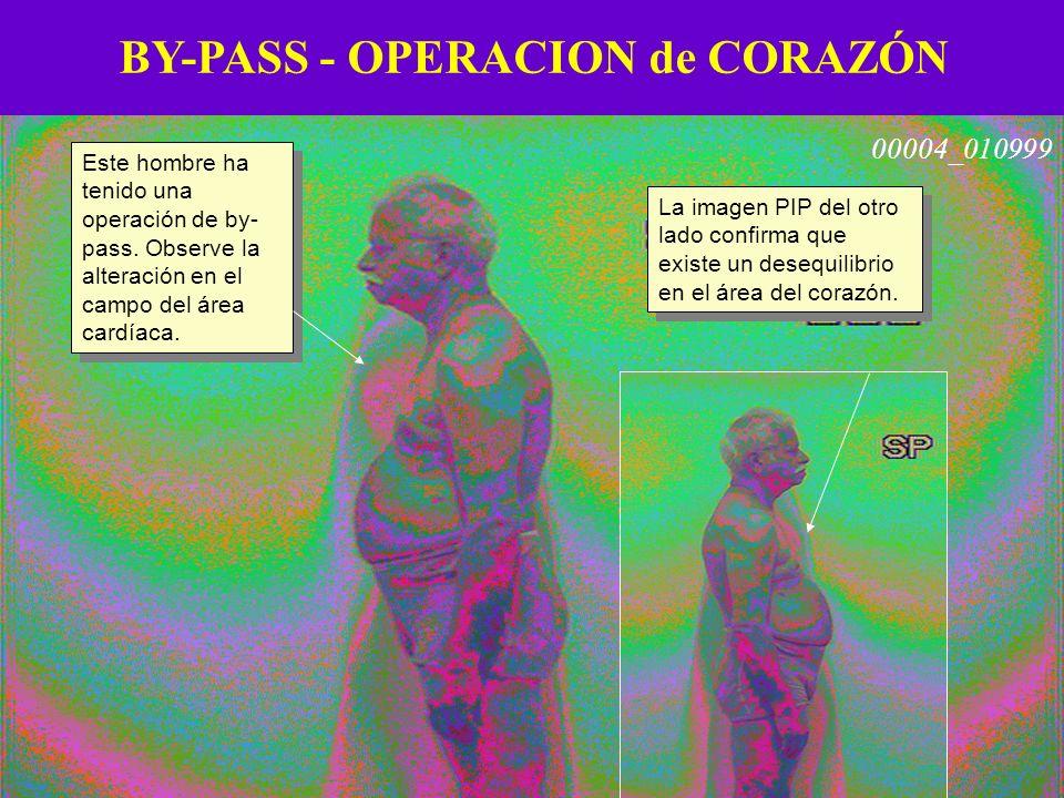BY-PASS - OPERACION de CORAZÓN Este hombre ha tenido una operación de by- pass. Observe la alteración en el campo del área cardíaca. La imagen PIP del