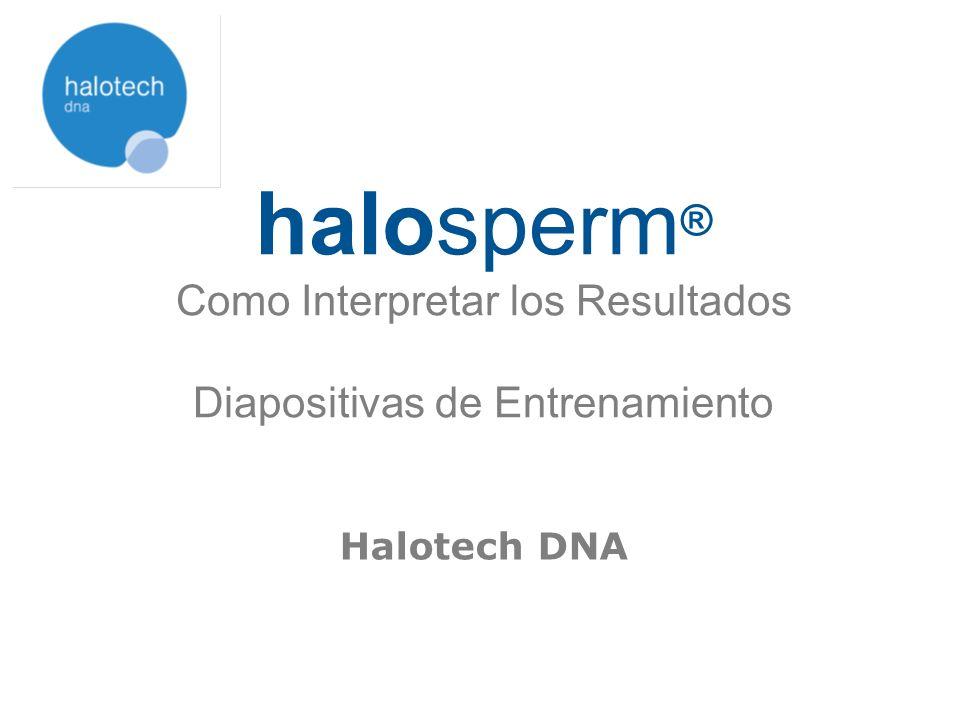 Después de procesar la muestra con halosperm ®, teñir el portaobjetos con DIFF-QUICK ® / Tinción Panoptic Examinar el portaobjetos bajo el microscopio de campo claro y clasificar entre 300-500 espermatozoides según los siguientes criterios: Cómo calcular el índice de fragmentación (SDF) Índice de fragmentación SDF (%) = 100 x Espermatozoides con ADN fragmentado Total espermatozoides contados