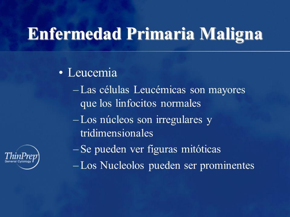 Enfermedad Primaria Maligna Leucemia –Las células Leucémicas son mayores que los linfocitos normales –Los núcleos son irregulares y tridimensionales –