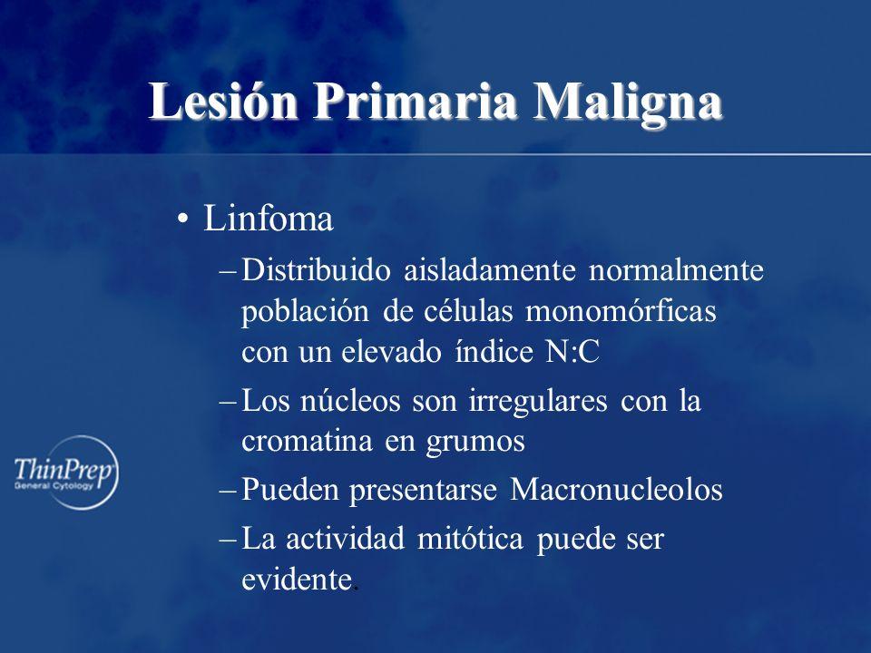 Lesión Primaria Maligna Linfoma –Distribuido aisladamente normalmente población de células monomórficas con un elevado índice N:C –Los núcleos son irr