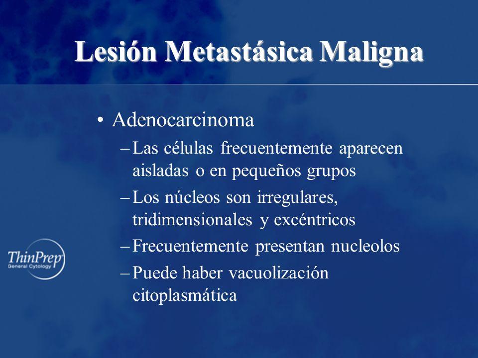 Lesión Metastásica Maligna Adenocarcinoma –Las células frecuentemente aparecen aisladas o en pequeños grupos –Los núcleos son irregulares, tridimensio