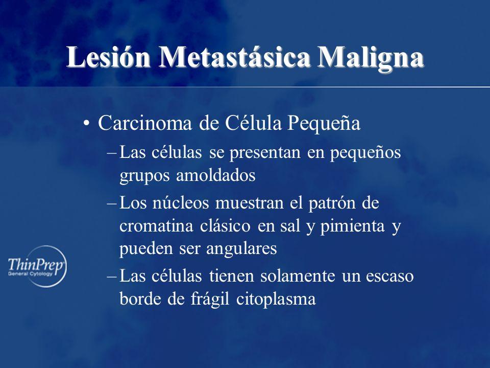 Lesión Metastásica Maligna Carcinoma de Célula Pequeña –Las células se presentan en pequeños grupos amoldados –Los núcleos muestran el patrón de croma