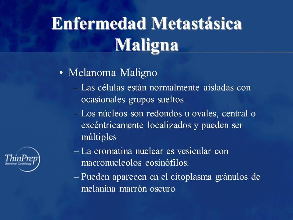 Enfermedad Metastásica Maligna Melanoma Maligno –Las células están normalmente aisladas con ocasionales grupos sueltos –Los núcleos son redondos u ova
