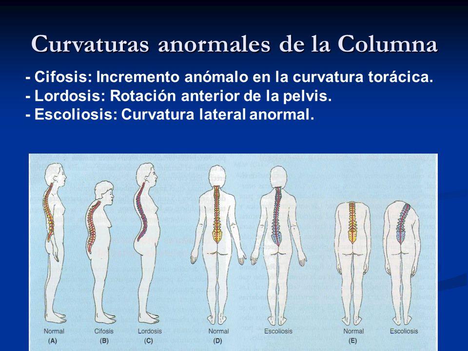 Curvaturas anormales de la Columna - Cifosis: Incremento anómalo en la curvatura torácica. - Lordosis: Rotación anterior de la pelvis. - Escoliosis: C