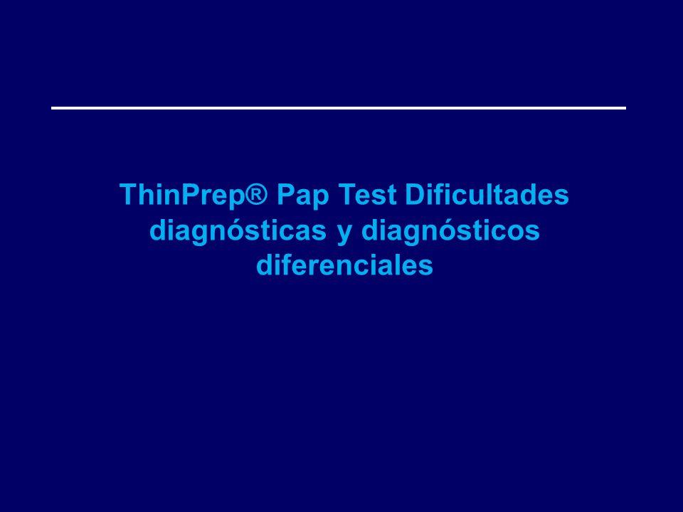 ThinPrep® Pap Test Dificultades diagnósticas y diagnósticos diferenciales