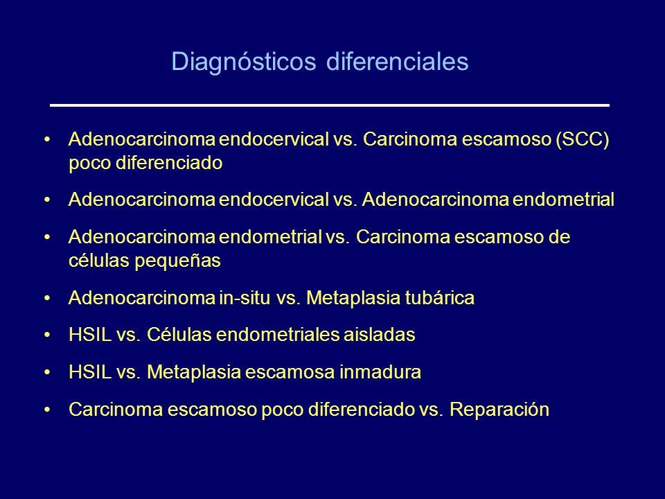 Diagnósticos diferenciales Adenocarcinoma endocervical vs. Carcinoma escamoso (SCC) poco diferenciado Adenocarcinoma endocervical vs. Adenocarcinoma e