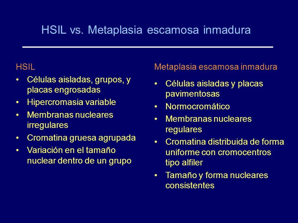 HSIL vs. Metaplasia escamosa inmadura HSIL Células aisladas, grupos, y placas engrosadas Hipercromasia variable Membranas nucleares irregulares Cromat