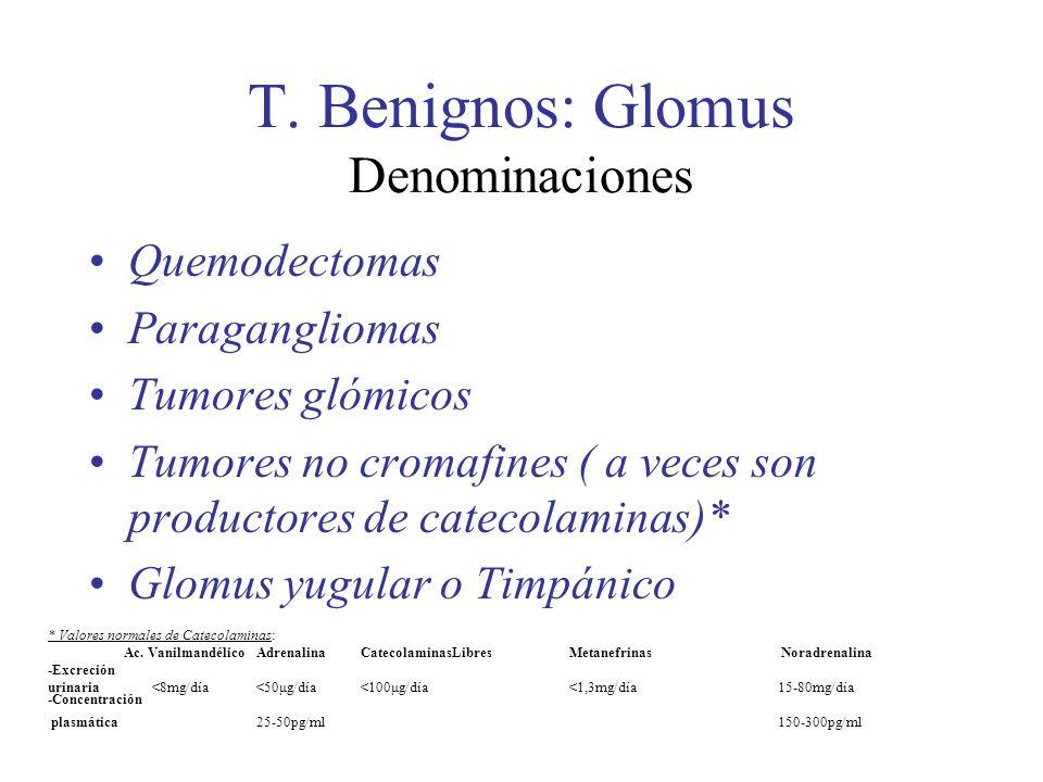 T. Benignos: Glomus Denominaciones Quemodectomas Paragangliomas Tumores glómicos Tumores no cromafines ( a veces son productores de catecolaminas)* Gl