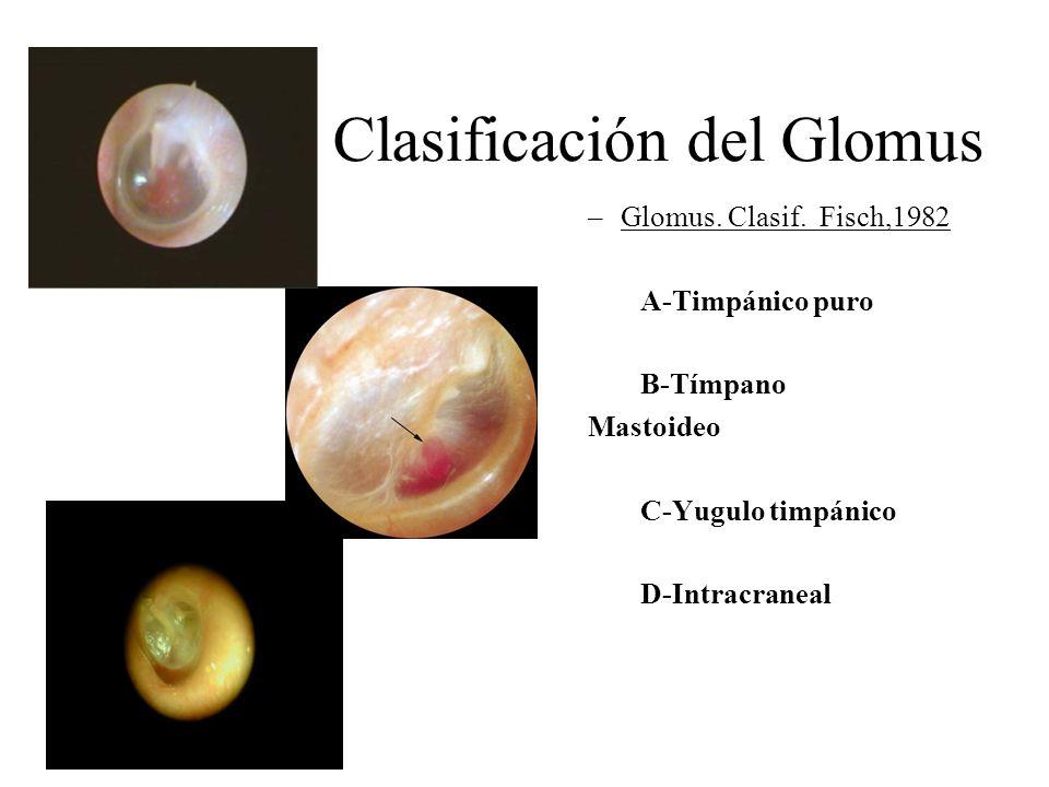 Clasificación del Glomus –Glomus. Clasif. Fisch,1982 A-Timpánico puro B-Tímpano Mastoideo C-Yugulo timpánico D-Intracraneal C