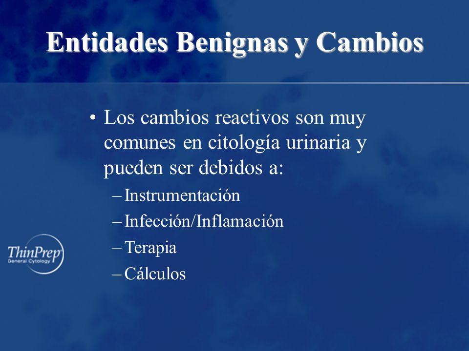 Entidades Benignas y Cambios Los cambios reactivos son muy comunes en citología urinaria y pueden ser debidos a: –Instrumentación –Infección/Inflamaci