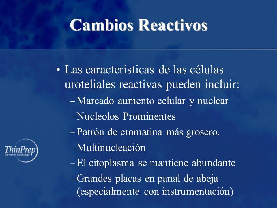 Cambios Reactivos Las características de las células uroteliales reactivas pueden incluir: –Marcado aumento celular y nuclear –Nucleolos Prominentes –