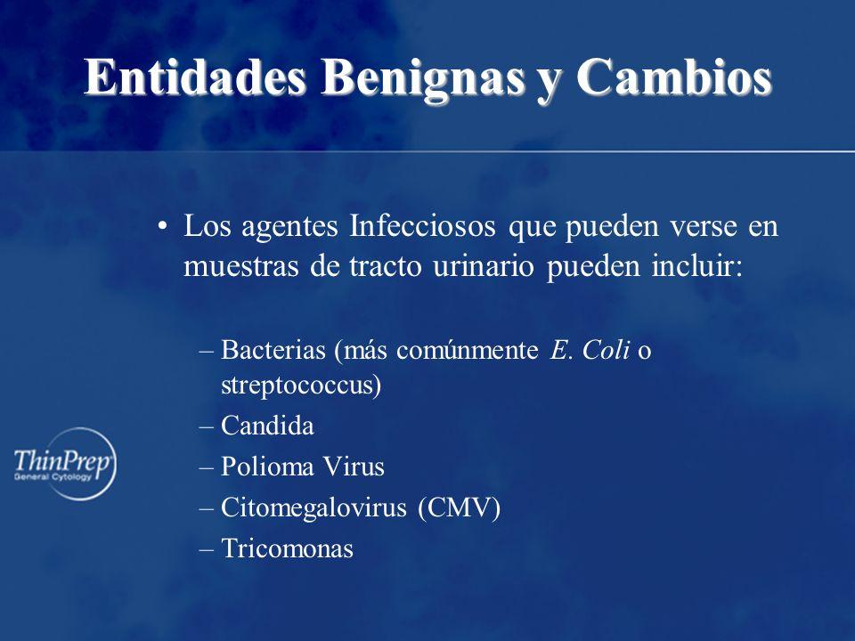 Entidades Benignas y Cambios Los agentes Infecciosos que pueden verse en muestras de tracto urinario pueden incluir: –Bacterias (más comúnmente E. Col