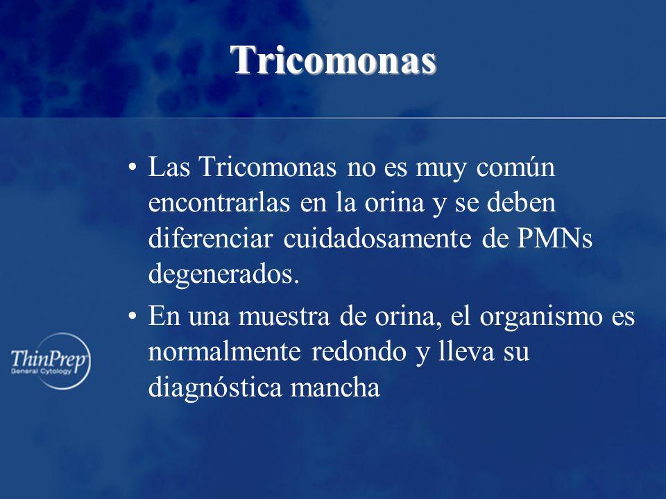 Tricomonas Las Tricomonas no es muy común encontrarlas en la orina y se deben diferenciar cuidadosamente de PMNs degenerados. En una muestra de orina,