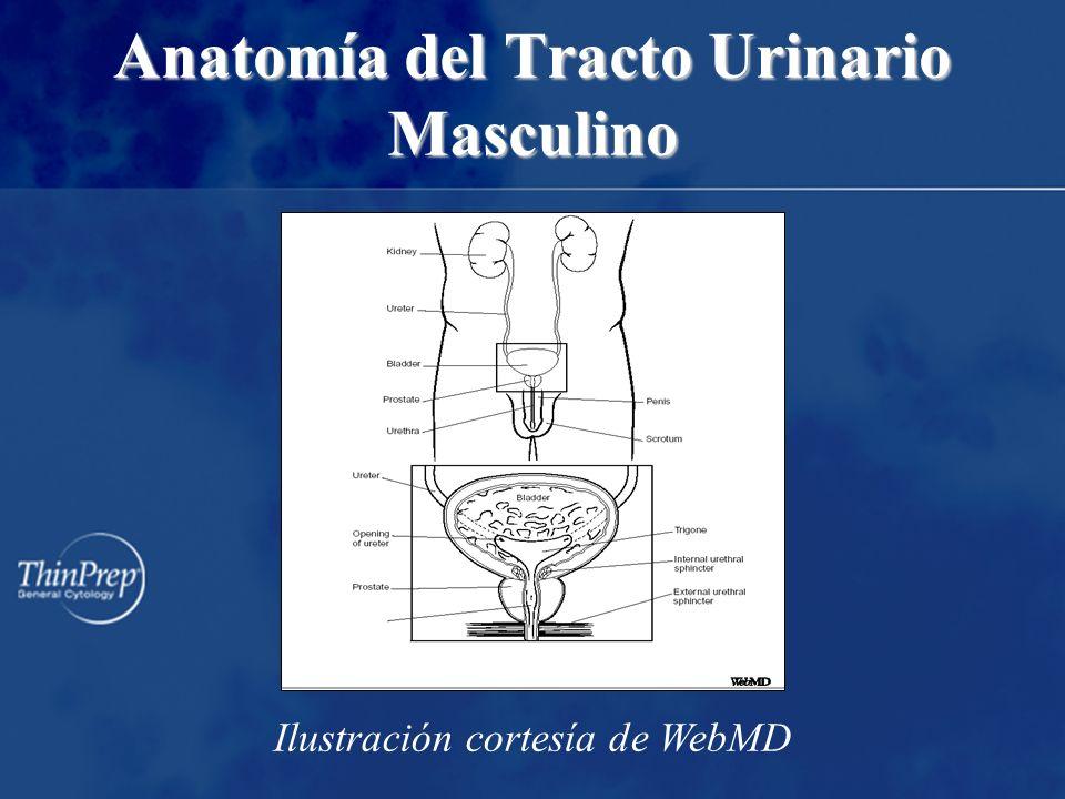 Anatomía del Tracto Urinario Masculino Ilustración cortesía de WebMD