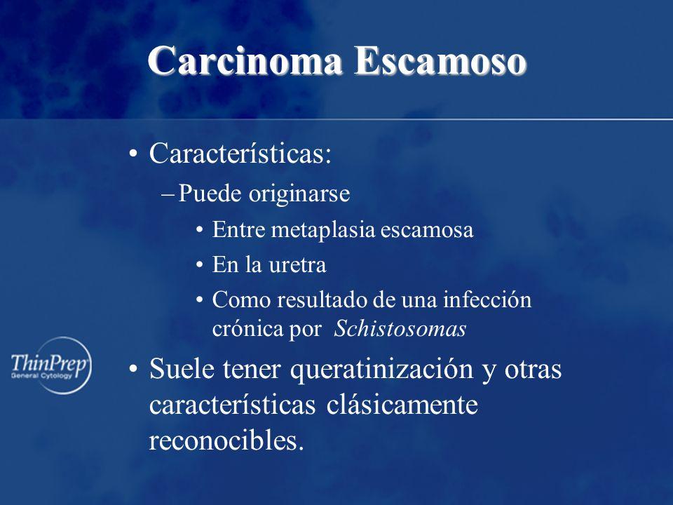 Carcinoma Escamoso Características: –Puede originarse Entre metaplasia escamosa En la uretra Como resultado de una infección crónica por Schistosomas