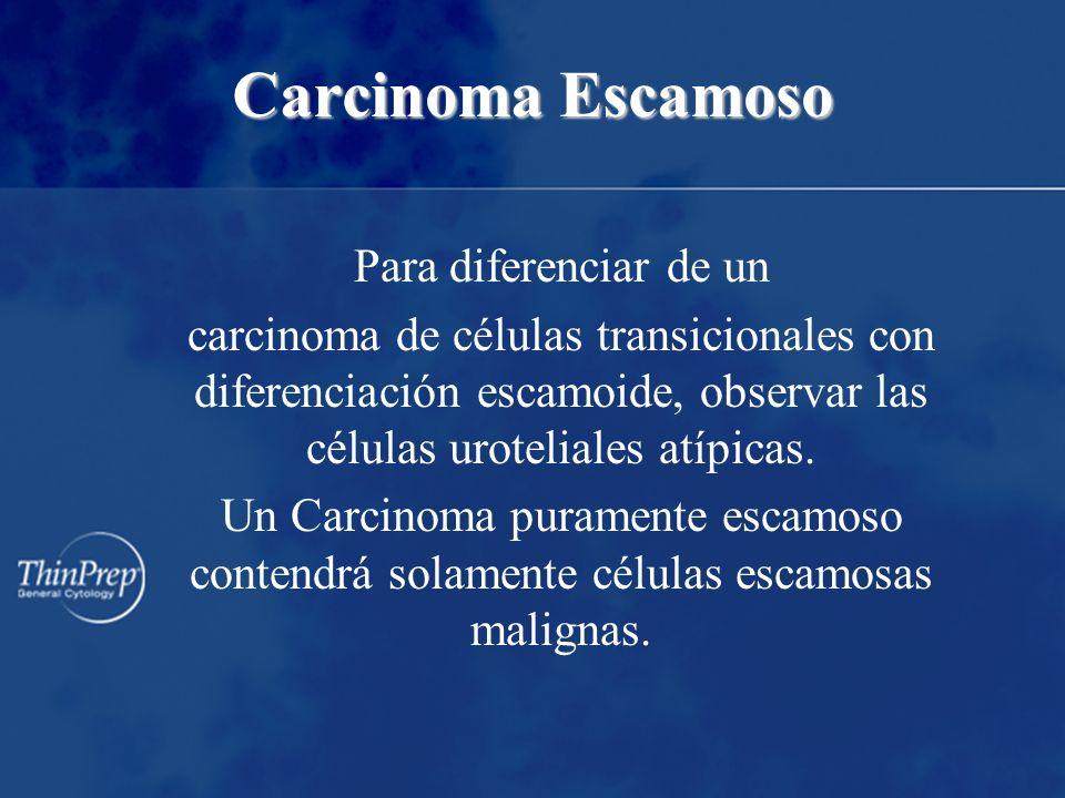 Carcinoma Escamoso Para diferenciar de un carcinoma de células transicionales con diferenciación escamoide, observar las células uroteliales atípicas.