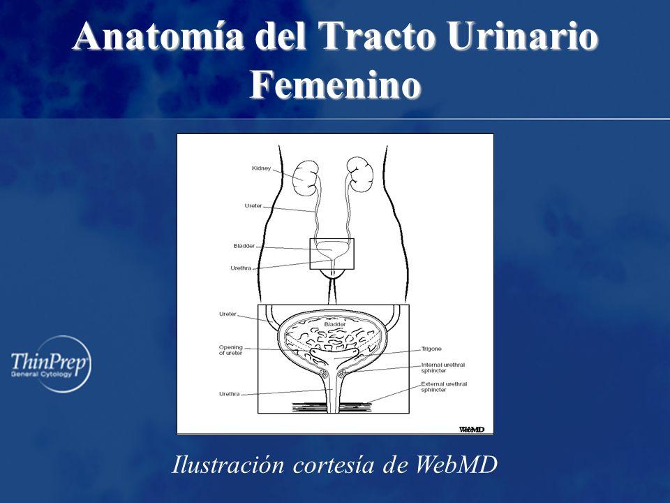 Anomalías CIS de Célula Transicional (Urotelial) Carcinoma de Célula Transicional (Urotelial) –Grado I –Grado II –Grado III