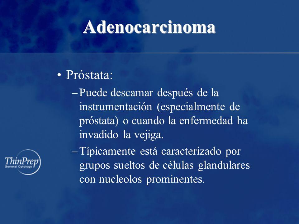 Adenocarcinoma Próstata: –Puede descamar después de la instrumentación (especialmente de próstata) o cuando la enfermedad ha invadido la vejiga. –Típi