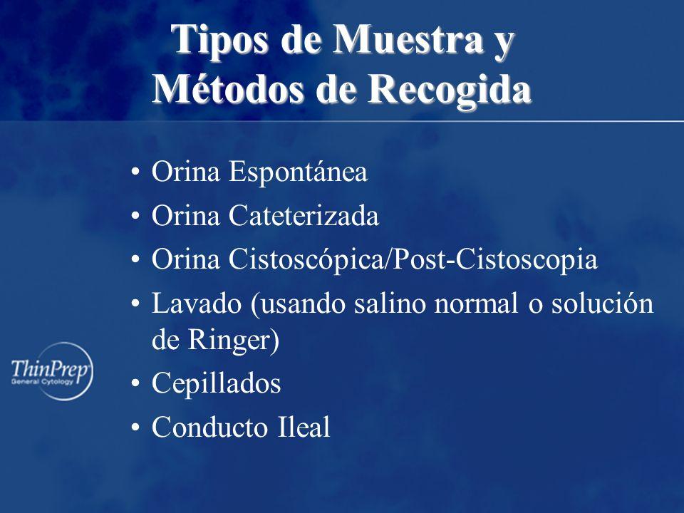 Tipos de Muestra y Métodos de Recogida Orina Espontánea Orina Cateterizada Orina Cistoscópica/Post-Cistoscopia Lavado (usando salino normal o solución