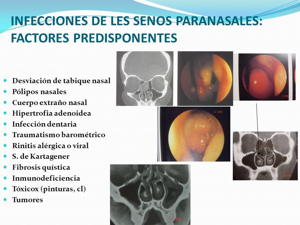 INFECCIONES DE LES SENOS PARANASALES: FACTORES PREDISPONENTES Desviación de tabique nasal Pólipos nasales Cuerpo extraño nasal Hipertrofia adenoidea I