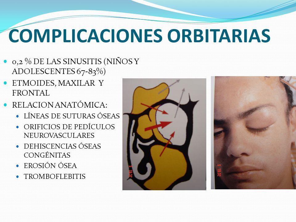 COMPLICACIONES ORBITARIAS 0,2 % DE LAS SINUSITIS (NIÑOS Y ADOLESCENTES 67-83%) ETMOIDES, MAXILAR Y FRONTAL RELACION ANATÓMICA: LÍNEAS DE SUTURAS ÓSEAS