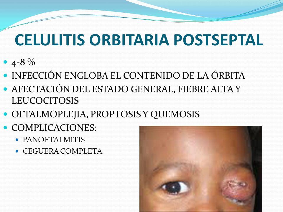 CELULITIS ORBITARIA POSTSEPTAL 4-8 % INFECCIÓN ENGLOBA EL CONTENIDO DE LA ÓRBITA AFECTACIÓN DEL ESTADO GENERAL, FIEBRE ALTA Y LEUCOCITOSIS OFTALMOPLEJ