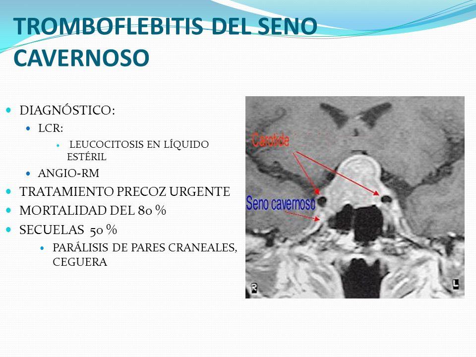 TROMBOFLEBITIS DEL SENO CAVERNOSO DIAGNÓSTICO: LCR: LEUCOCITOSIS EN LÍQUIDO ESTÉRIL ANGIO-RM TRATAMIENTO PRECOZ URGENTE MORTALIDAD DEL 80 % SECUELAS 5
