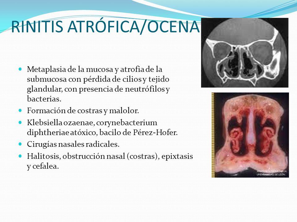 RINITIS ATRÓFICA/OCENA Metaplasia de la mucosa y atrofia de la submucosa con pérdida de cilios y tejido glandular, con presencia de neutrófilos y bact