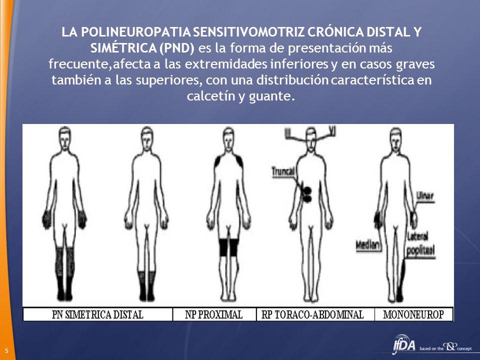 5 LA POLINEUROPATIA SENSITIVOMOTRIZ CRÓNICA DISTAL Y SIMÉTRICA (PND) es la forma de presentación más frecuente,afecta a las extremidades inferiores y